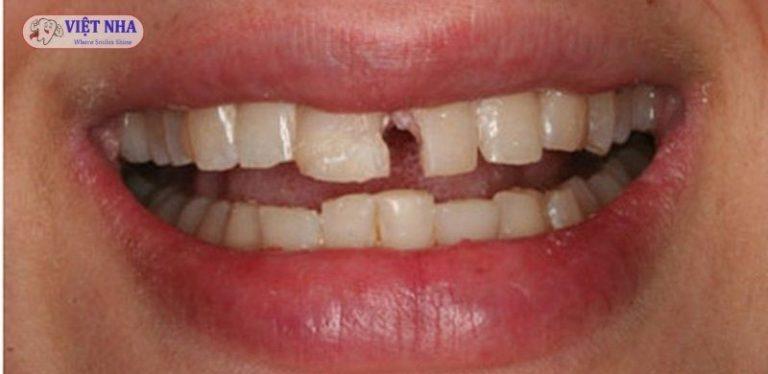Các bệnh lý răng miệng phổ biến