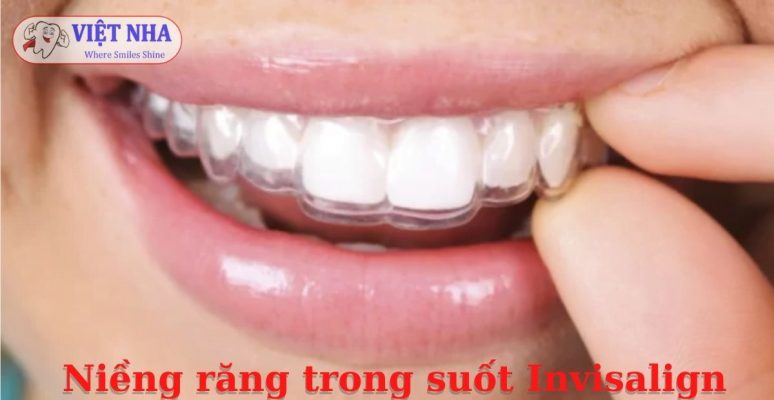 Niềng răng trong suốt Invisalign