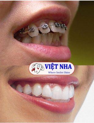 Cách khắc phục răng hô