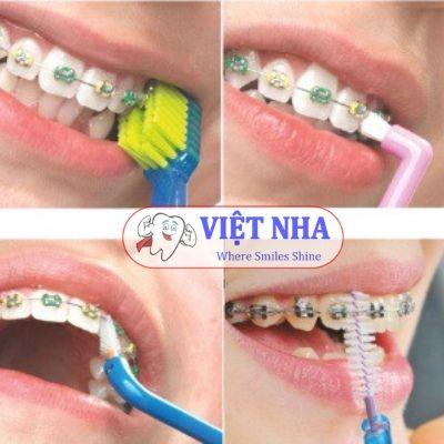Chăm sóc răng miệng trong quá trình chỉnh nha