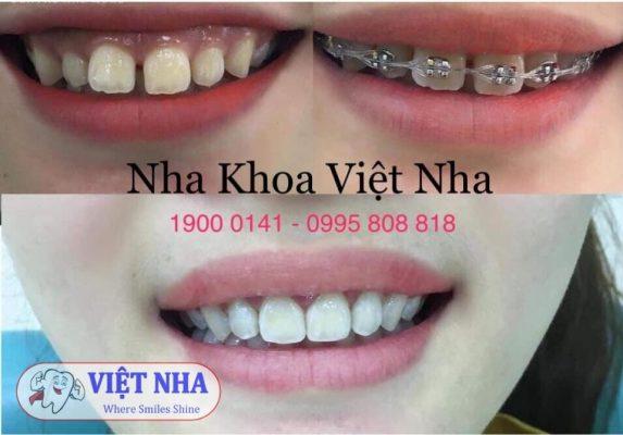 Niềng răng có cần nhổ răng