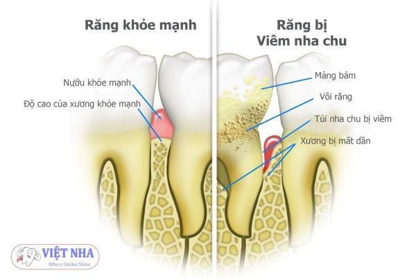 Răng bị sâu