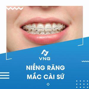 Cách khắc phục các dạng răng hô