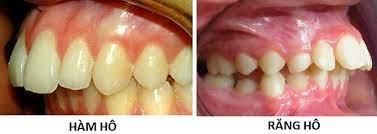 Các dạng răng hô