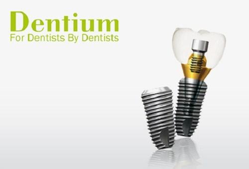 Loại trụ Implant