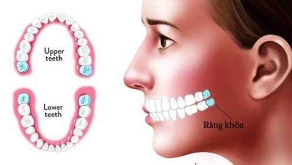 Răng khôn mọc khi nào, thời gian mọc bao lâu
