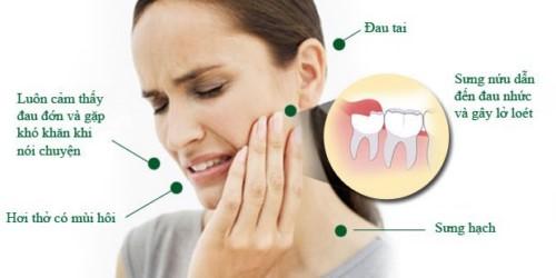 Các cơn đau khi mọc răng khôn