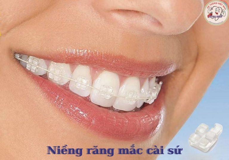 Niềng răng mắc cài sứ – Nha Khoa Việt Nha