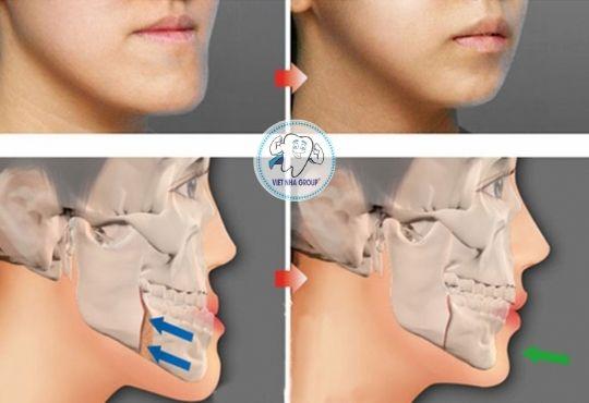 Cách điều trị Răng móm – Khớp cắn ngược tại Nha khoa Việt Nha