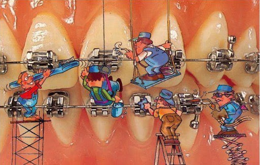 Những tác hại của việc niềng răng sai cách