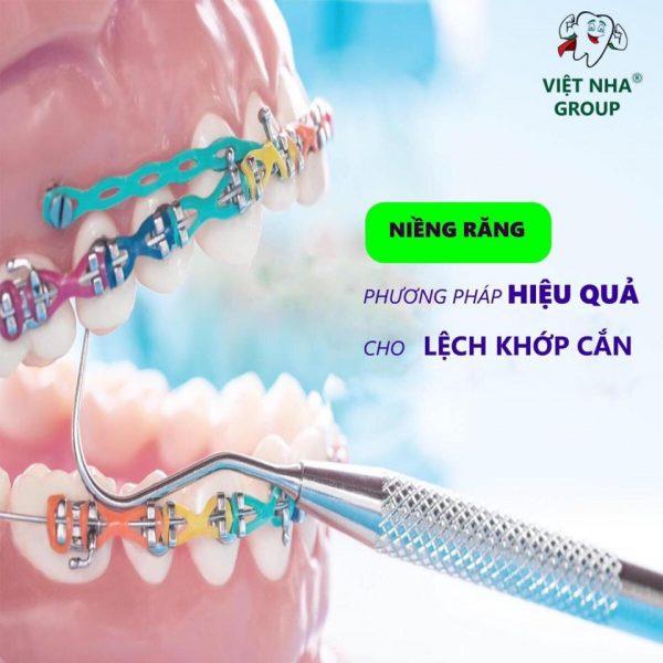 Răng lệch khớp cắn