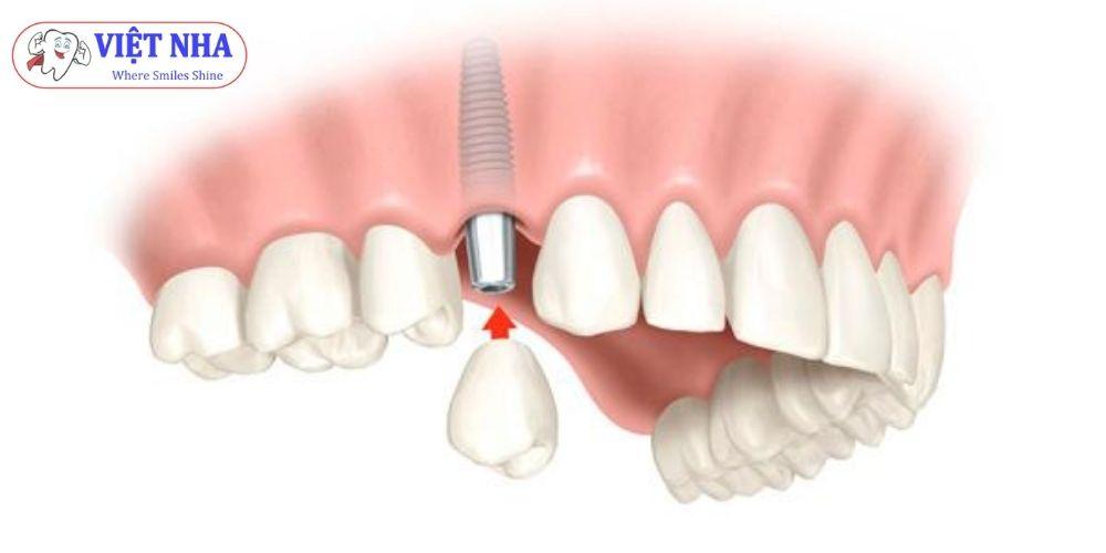 Phục hình Implant cho người mất 1 răng