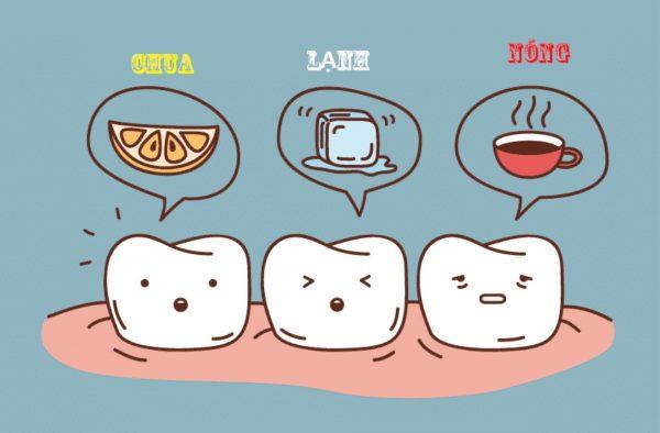 Nên kiêng gì sau khi trồng răng Implant