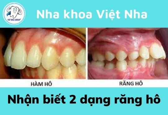 Nhận biết 2 dạng răng hô
