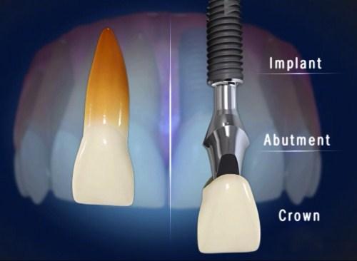Sự khác nhau giữa Trồng răng Implant và Trồng răng sứ