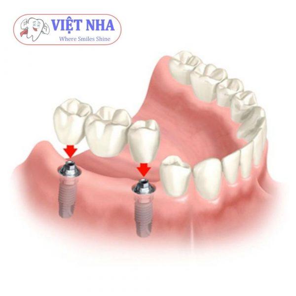Trồng răng Implant ở đâu