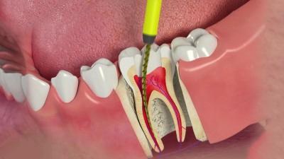 Có cần lấy tủy răng trước khi bọc răng sứ không?