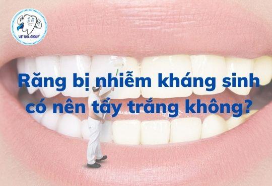 Răng bị nhiễm màu có nên tẩy trắng răng không